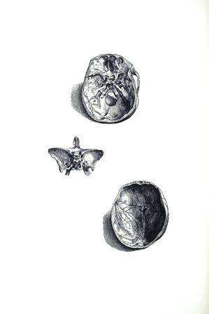 Skulls 5